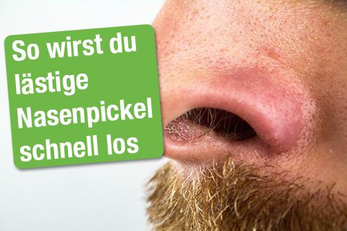 Pickel auf der Nase